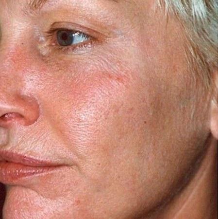 фотоомоложение кожи лица фото до