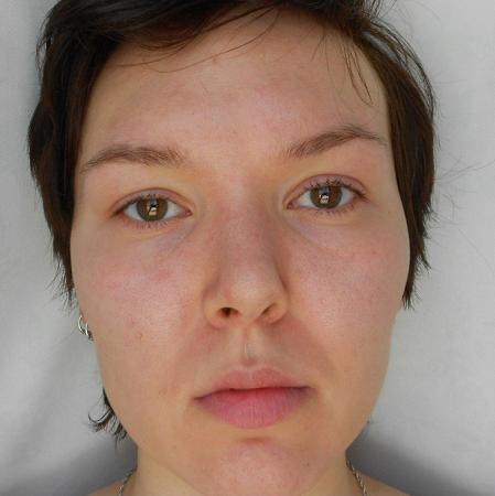 биоревитализация лица фото до