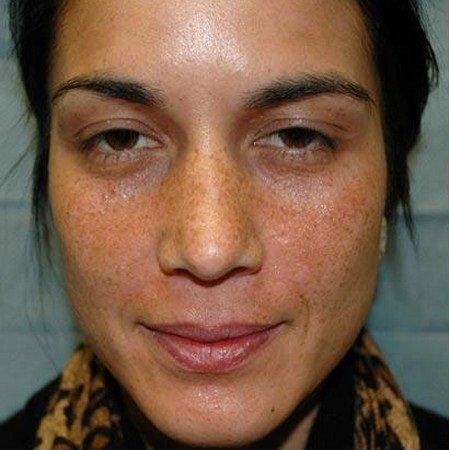 алмазный пилинг лица фото до