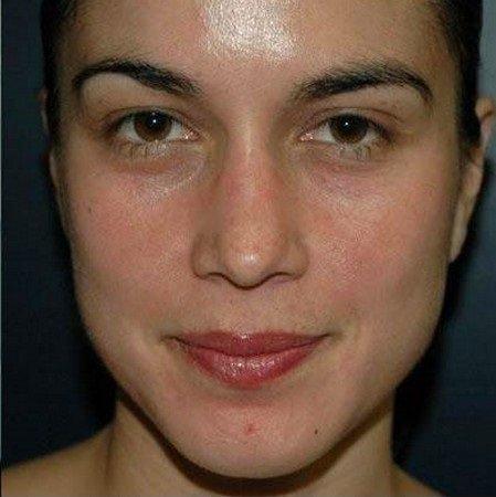 алмазный пилинг лица фото после