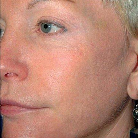 фотоомоложение кожи лица фото после