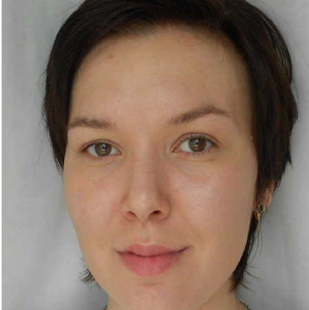 биоревитализация лица фото после